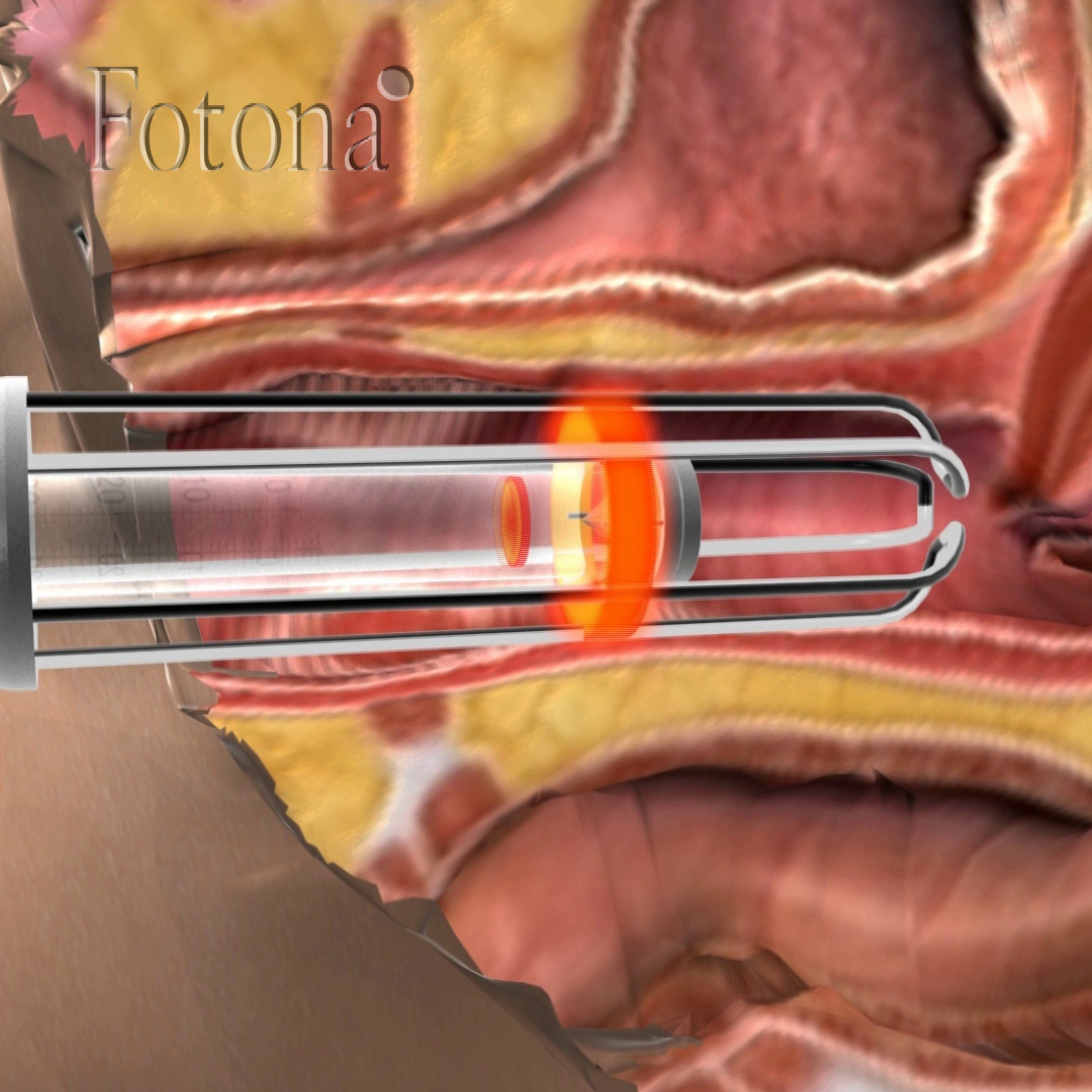 New laser treatment for stress urinary incontinence
